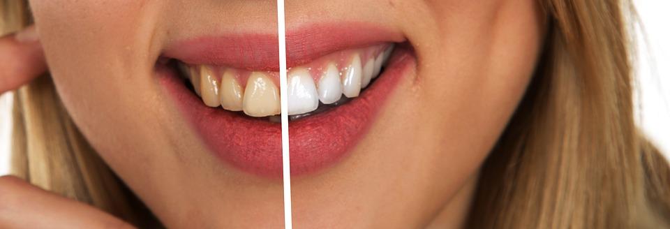 De ce ofertele pentru albire dentară nu sunt pentru toată lumea? De unde știu dacă îmi pot albi dinții și eu? (p) miruna ioani