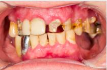 De ce ofertele pentru albire dentară nu sunt pentru toată lumea? De unde știu dacă îmi pot albi dinții și eu? miruna ioani