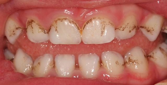 negreală colorații negre dinții copiilor miruna ioani